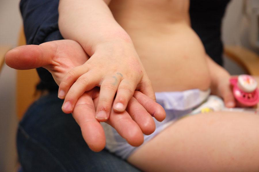 Ett av fem barn får eksem. Foto: Jan Fredrik Frantzen